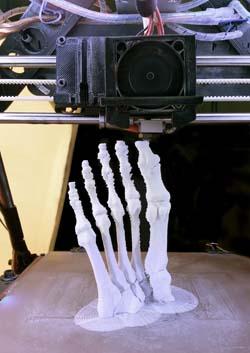 Medicina e impresión 3D